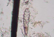 demodex_mite