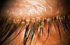 Lashes with dandruff